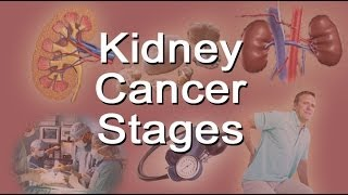 Kidney Cancer Stages