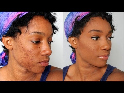 How to Fully Cover Acne Spots and Scars - Flawless Acne Foundation Tutorial on Dark Skin Black Women