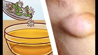How To Get Rid Of Skin Lumps (Lipomas) Naturally