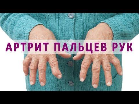 Что нужно знать об артрите суставов пальцев рук
