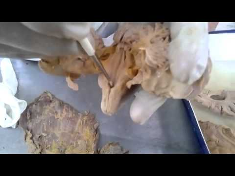 Floor of 4th ventricle youtube for Floor of 4th ventricle