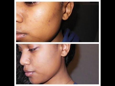hqdefault - Does Yogurt Remove Acne Scars