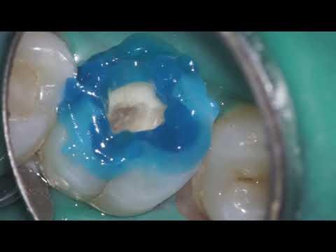 Лечение глубокого кариеса под микроскопом Carl Zeiss