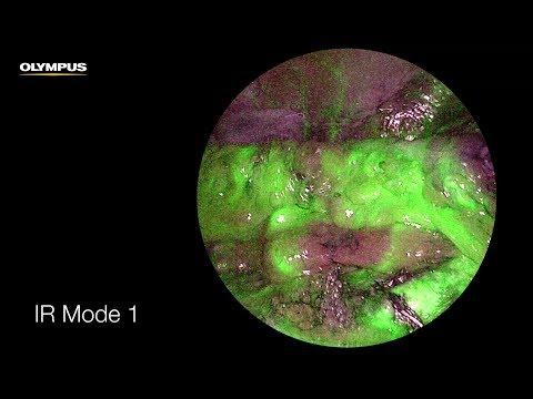 Real-Time Fluorescence (Infrared) Laparoscopy - How It Works