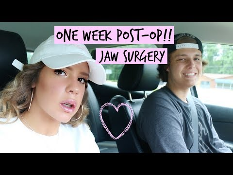 UPPER JAW SURGERY UPDATE.. 1 WEEK POST-OP | VICTORIA BACHLET