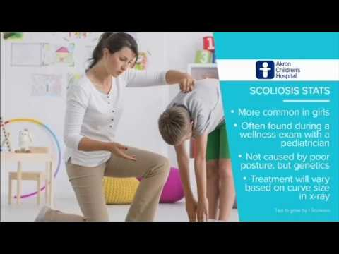 Scoliosis In Children - Tips To Grow By