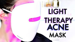 hqdefault - Medibeam Acne Light Therapy