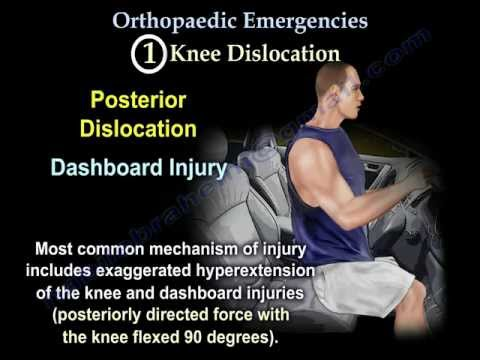 Orthopaedic Emergencies Part 2 - Everything You Need To Know - Dr. Nabil Ebraheim