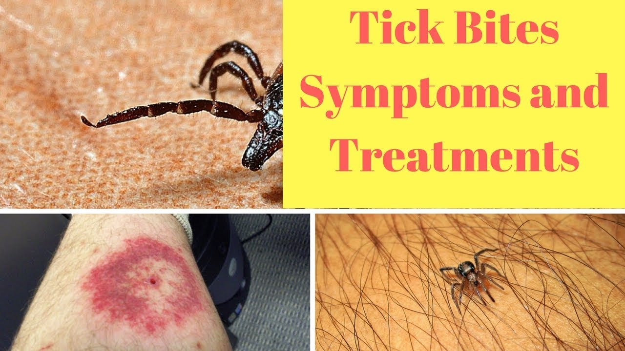 Have YOU got type A blood? You're more likely to be bitten by a tick