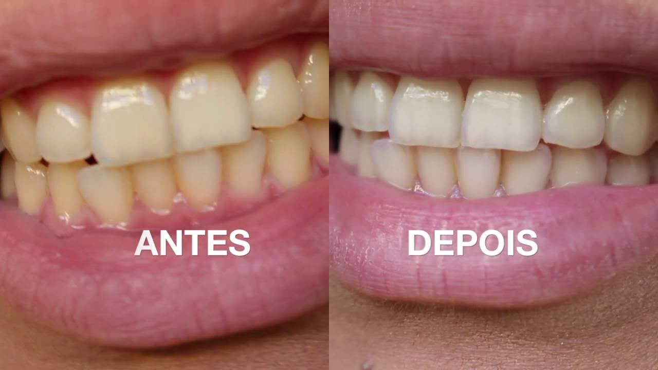 Clareando Os Dentes Em Casa Clareamento Dental Caseiro Funciona