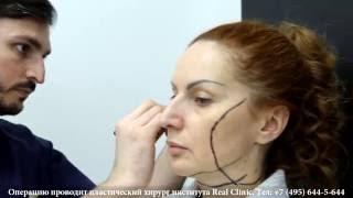 видео Смас (smas) лифтинг лица