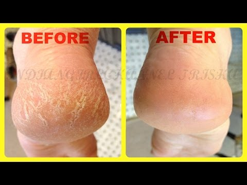 Home Remedies for Cracked Heels /remove cracked Heels fast & easyly at home