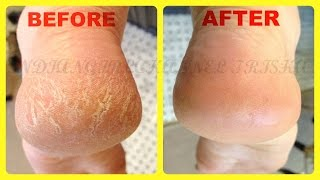 Home Remedies for Cracked Heels /remove cracked Hills fast & easyly at home