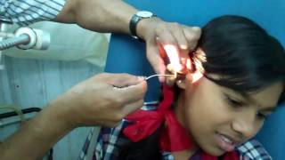 Ear Wax Removal  by Suction Cleaning - Dr Paulose FRCS (ENT)