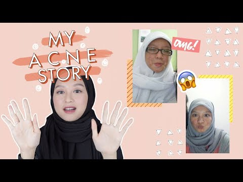 Why I Stopped Photoshopping My Face | Acne Story