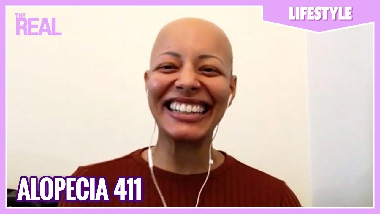 Alopecia 411