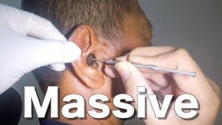 Removing Officer's Massive Impacted Earwax Without Earwax Softener