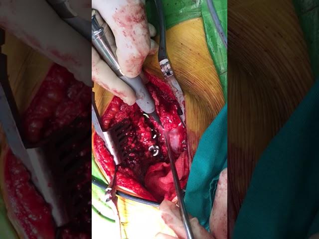 Kemik Testeresi ile Omurilik Kanal Genişletilmesi