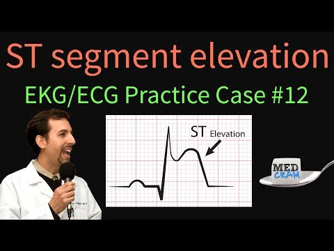 ST Elevation - EKG / ECG Interpretation Case 12 (STEMI, MI, ACS)