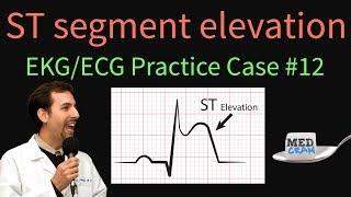 ST Elevation - EKG / ECG Interpretation Case 12 (STEMI, MI, ACS)