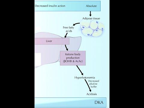 Diabetic Ketoacidosis (DKA)