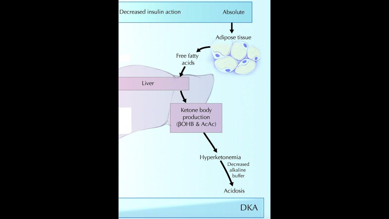 Diabetic Ketoacidosis (DKA) - YouTube