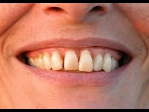 maladie parodontale comment guérir