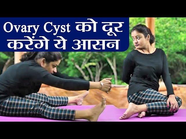 Yoga: Ovary Cyst की समस्या को दूर करेंगे