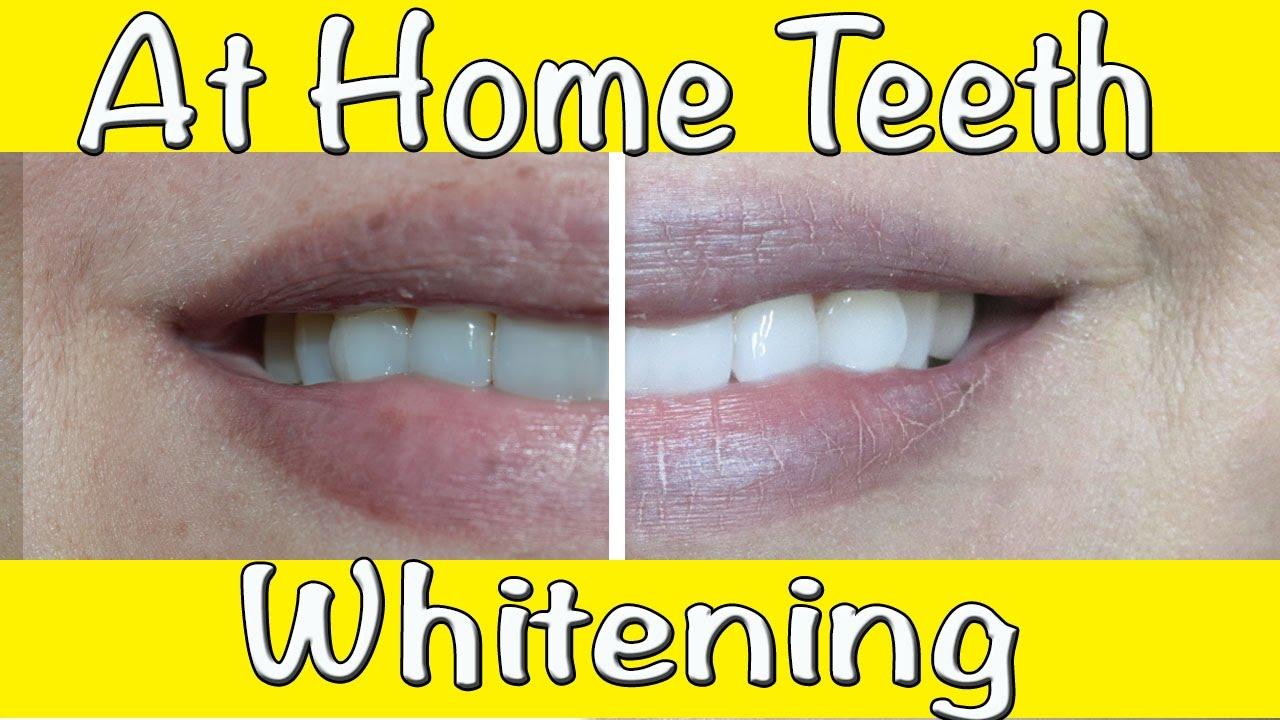 How To Whiten Teeth At Home Professional Teeth Bleaching