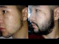 Antes e Depois - Minoxidil Kirkland - Barba - 6 Meses.
