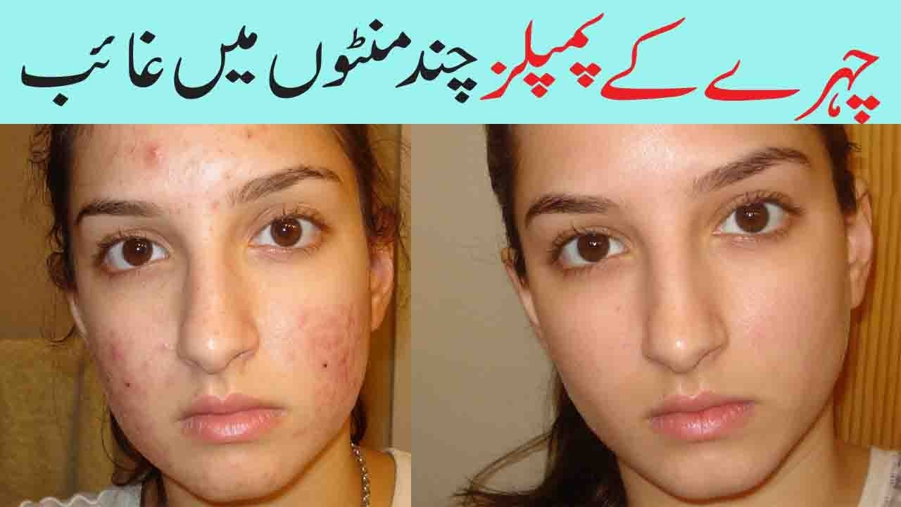 Natural way to remove pimples on face