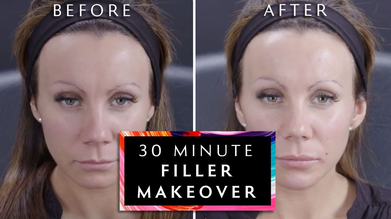 How Dermal Fillers Can Be Used All Over The Face   Dr Sarah Tonks