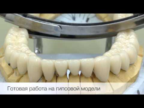 Протезирование зубов в Перми, цены на съемные протезы