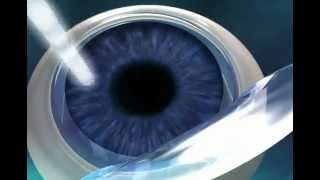 Using IntraLase Technology for LASIK Hawaii - John Olkowski, M.D.