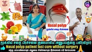 மூக்கில் சதை பிரச்சனை 4 மாதத்தில் 100% தீர்வு   nasal polyps treatment tamil   Dr.Shanthi Krishna  