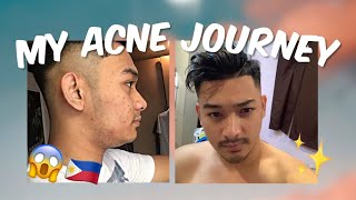 PAANO MAWALA ANG PIMPLES AT DARK SPOTS IN JUST 3 STEPS! REAL TALK! USING LOCAL BRANDS | TAGALOG