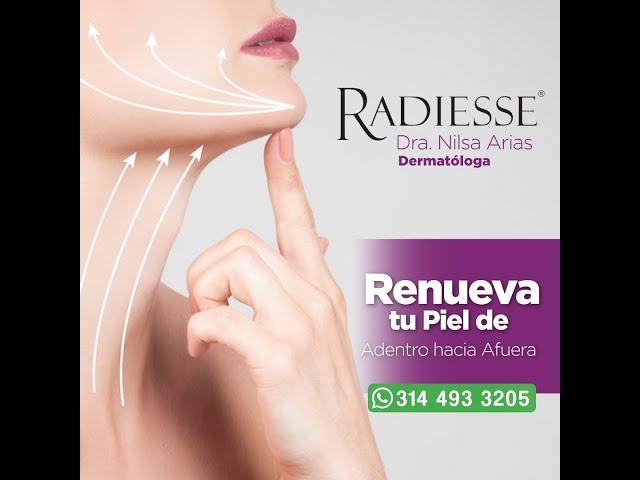 Aplicación de Radiesse. By Dra Nilsa Arias.