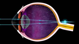 Short Sighted and Long Sighted - 3D Medical Animation of the Eye || ABP ©