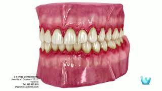 Odontologia Carvalho - Periodontia