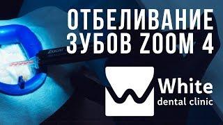 Отбеливание зубов в Самаре. Система Zoom 4. Услуги стоматолога - клиника White Dental Clinic Самара.(, 2018-02-12T21:51:00.000Z)