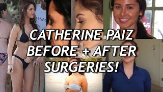 CATHERINE PAIZ FROM ACE FAMILY BEFORE AFTER SURGERIES - teaofthegram