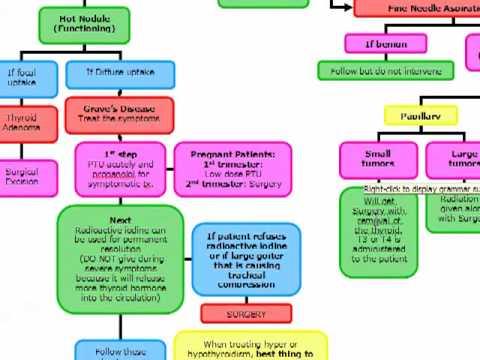 USMLE ALGORITHMS: Thyroid Nodule