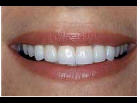 Jupiter Dentist  Call (561) 557 - 4159 Best Dentist in Jupiter,Fl.