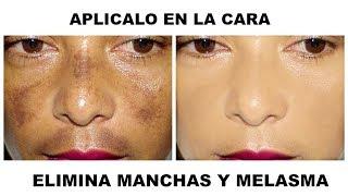 ELIMINA MANCHAS Y MELASMA DE LA CARA.
