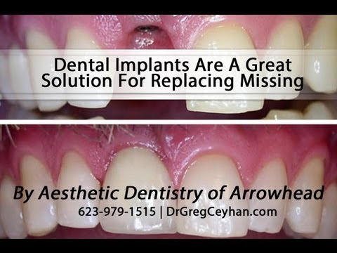 Why Dental Implants Are A Great Solution For Replacing Missing Teeth