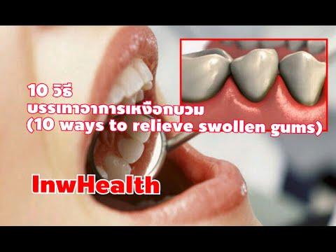 10 วิธีบรรเทาอาการเหงือกบวม (10 ways to relieve swollen gums) [lnwHealth]