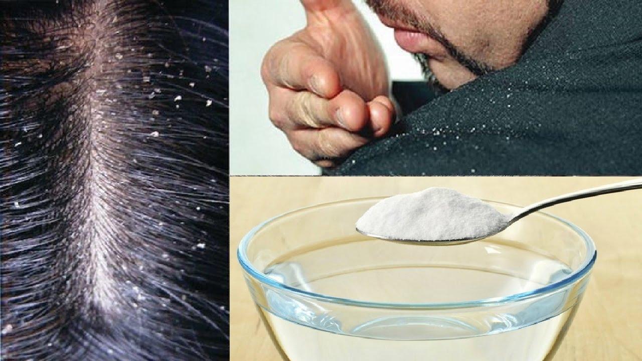 Como Quitar la Caspa Rápido y Efectivo, Bicarbonato para