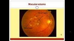 hqdefault - Abnormality Detection In Automated Mass Screening System Of Diabetic Retinopathy
