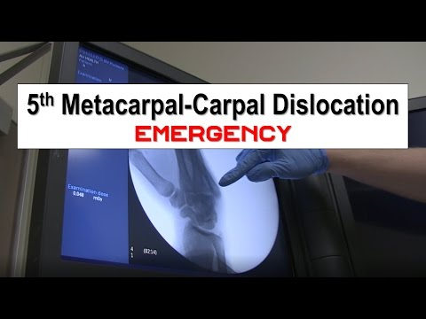 Fifth Metacarpal Dislocation and Reduction Emergency