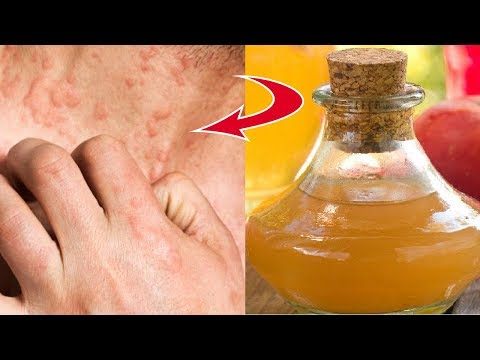 How To Use Apple Cider Vinegar To Treat Eczema It's Unbelievably Effective Life well lived!!!